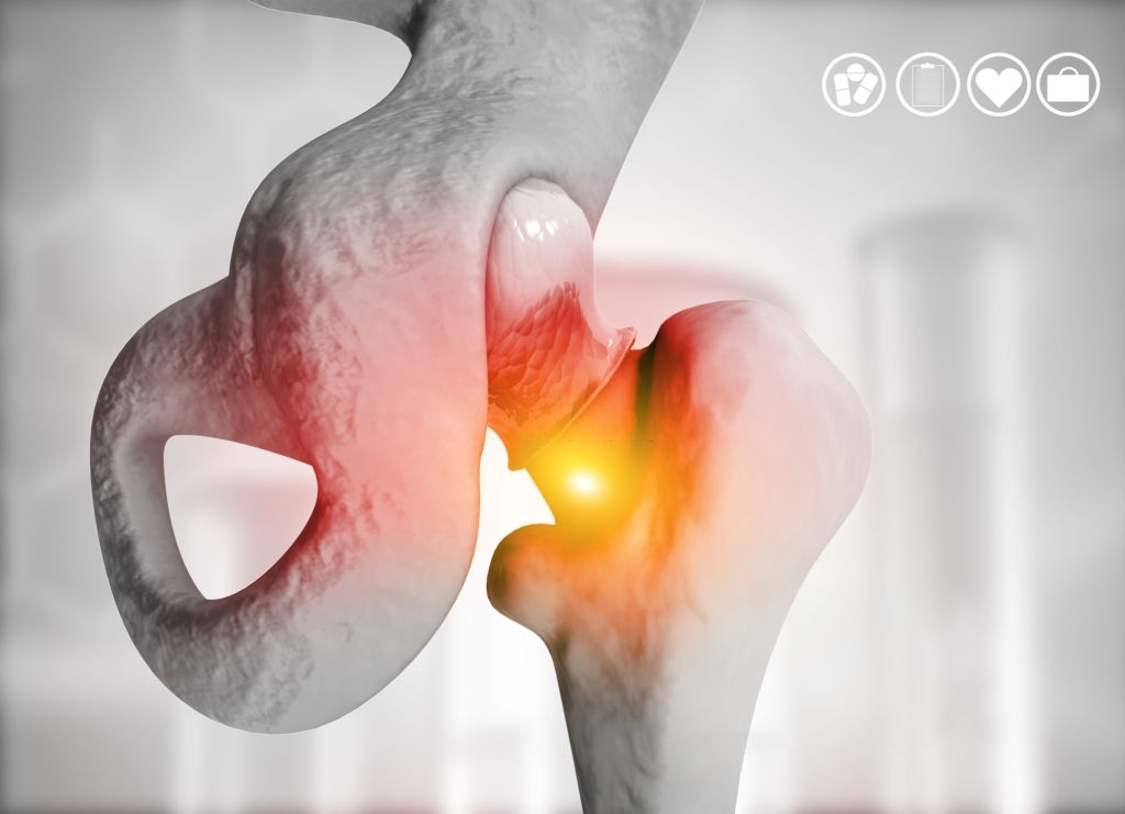 Hip replacement on medical background. 3d illustration